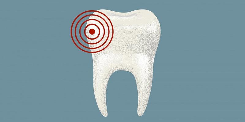 mal de dent carie